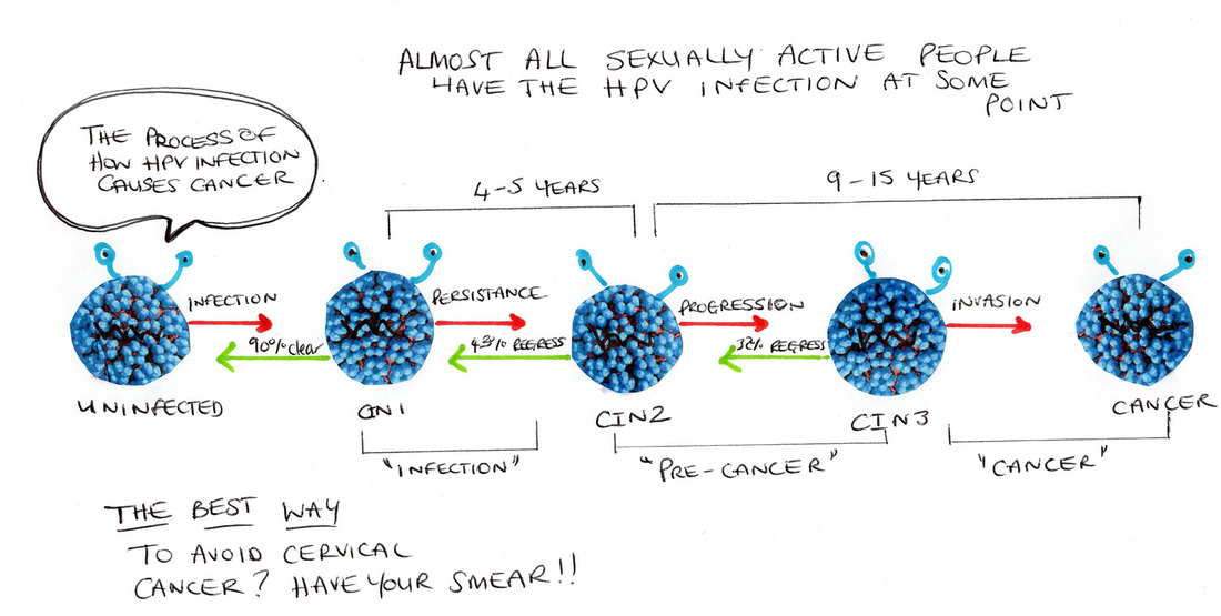 HPV progression diagram